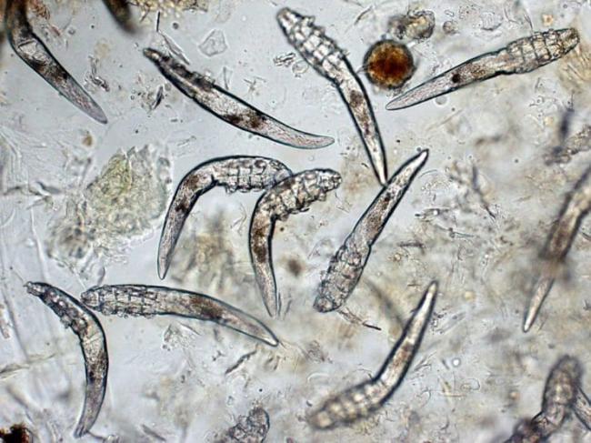 kleshh-Demodeks-pod-mikroskopom.jpg