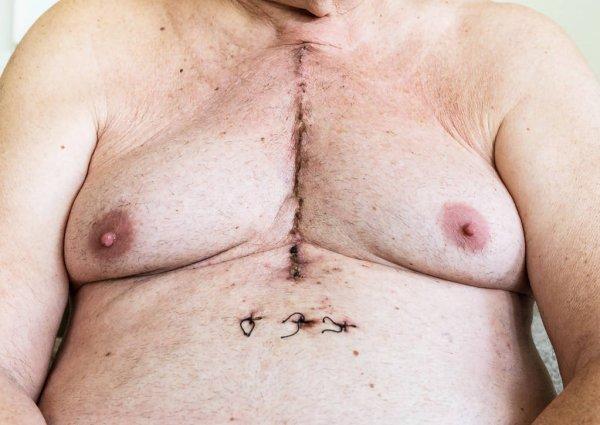 depositphotos_187729976-stock-photo-surgical-scar-from-cardiac-surgery.jpg