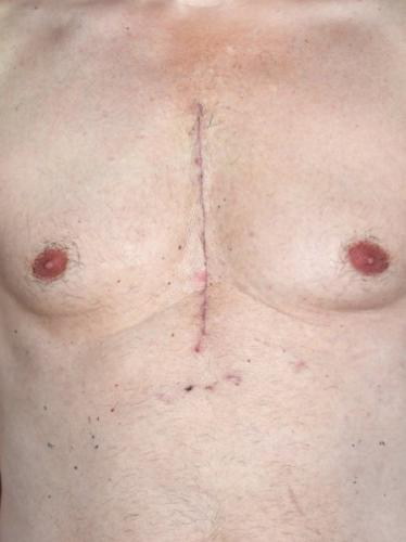 depositphotos_95401846-stock-photo-open-heart-surgery.jpg