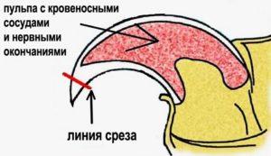 shema_strizhki_kogtey-300x173.jpg