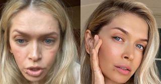 Наши звёзды без макияжа: 15 фото, которые удивят и даже шокируют
